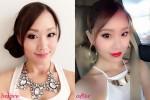 รีวิวผลลัพธ์หลังฉีด Botox พร้อมเตือนภัย Botox ปลอม เสี่ยงตาย! ดื้อยาทีหน้าเหี่ยวตลอดชีพ!!! และอันตรายจากโบท็อกซ์จีนเกาหลีที่อาจไม่ได้มาตรฐานอย่างที่โฆษณา!!!